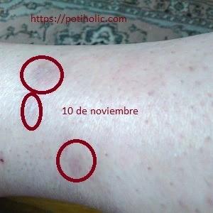 rosa mosqueta para cicatrices, evolución tras un mes de tratamiento en cicatriz no quirúrgica