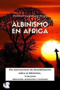 albinismo en africa 13 de junio dia internacional